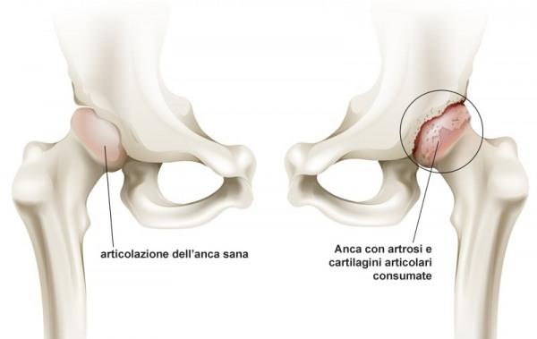 anca-artrosi