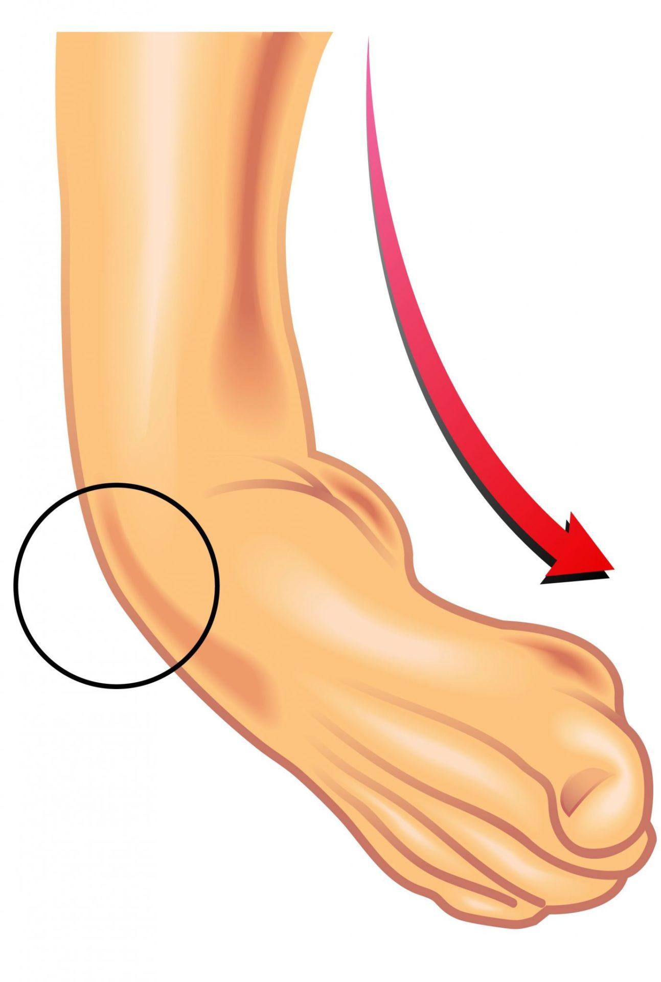 dolore-caviglia