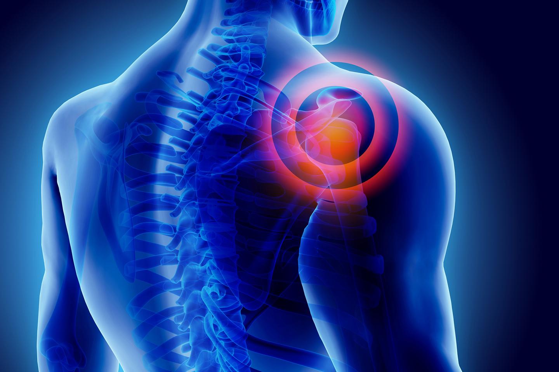 dolore-notturno-spalla