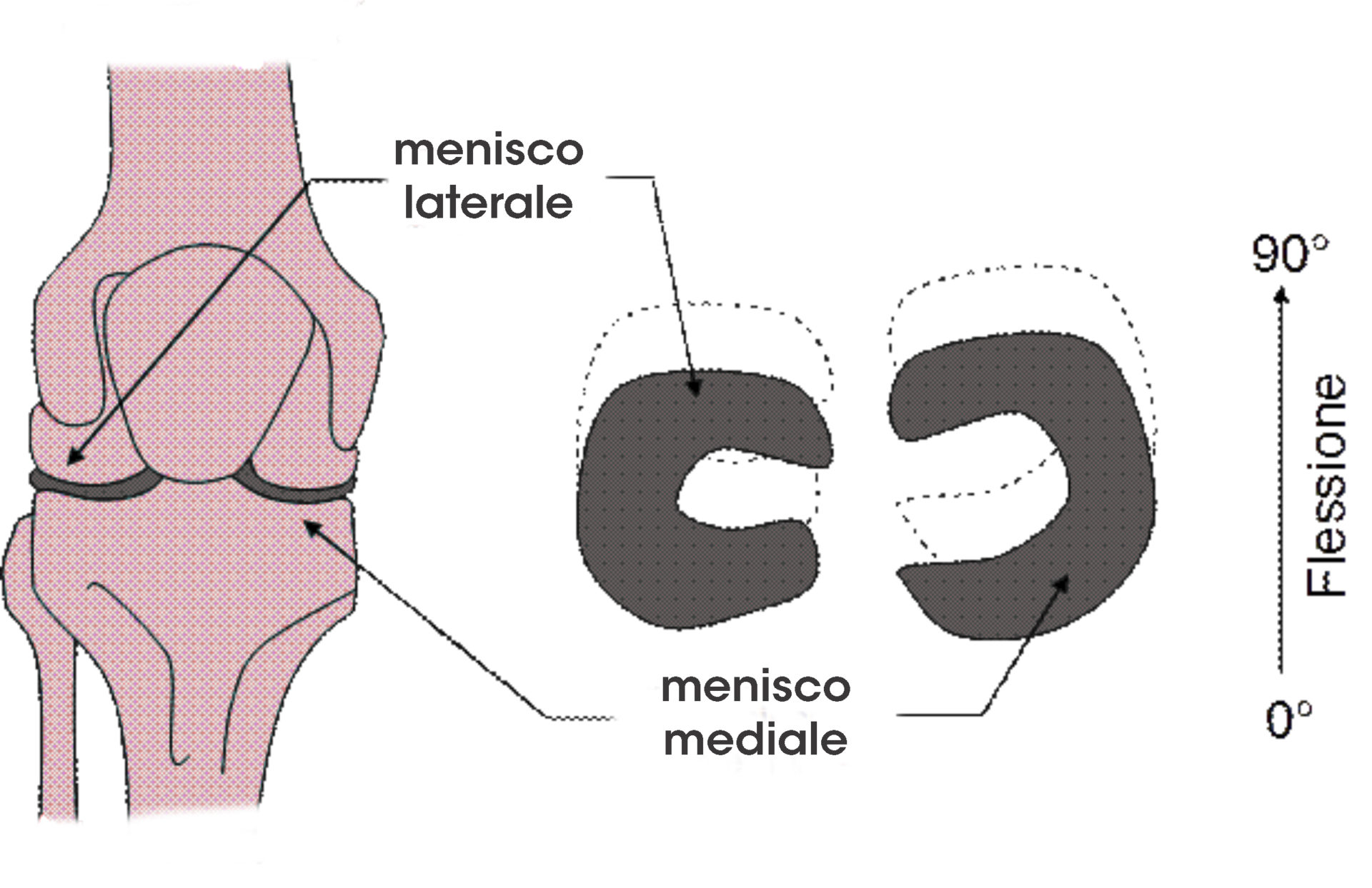 menisco-ginocchio