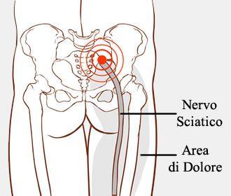 dolore-sciatica